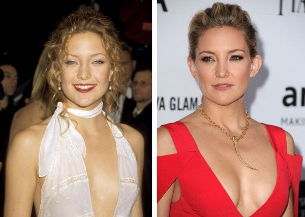 Plastic Surgery Before & After Face Lift and Tummy Tuck ...