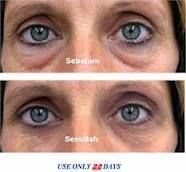 Instantly Ageless, before and after. Amazing results in 5 minutes.  b88gordon88@gmail.com