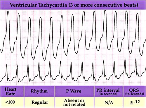 Ventricular Tachy ECG | Ventricular Tachycardia – Causes, Diagnosis And Treatment