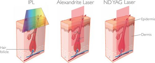 ipl, alexandrite laser, nd yag laser hair removal compare #dimyth #iplhairremoval #alexandritehairremoval #ndyaglaserhairremoval