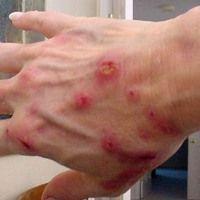 Obat Tradisional Penyakit Kulit dari Jelly Gamat Gold-G yang sudah teruji klinis dapat menyembuhkan segala macam penyakit kulit yang sangat aman dan tanpa efek samping apapun. Jelly Gamat Gold-G terbuat dari 100% bahan alami yang di olah melalui tangan para ahli gizi.