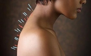Acupuncture for Anxiety Treatment – Effects and Acupoints
