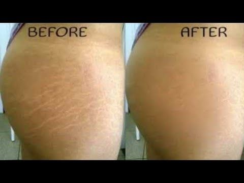 How To Get Rid Of Stretch Marks Fast This Remedy Works Perfect In