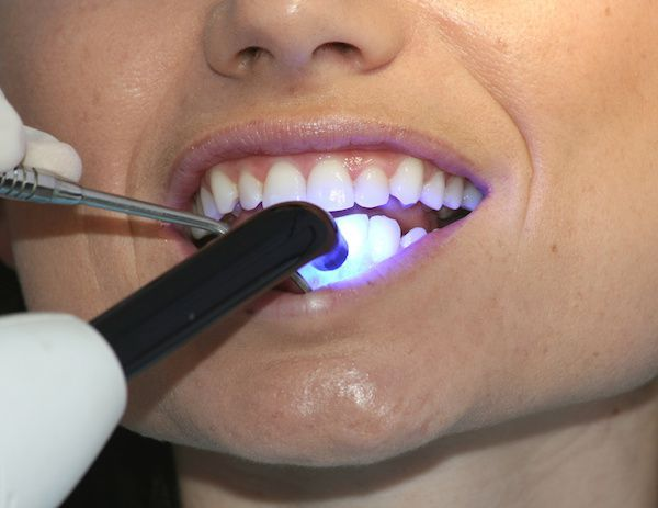 Kings Family Dental Centre the right clinic for white dental fillings in Kings Langley, Blacktown & Quakers Hill. Enquire more at kingsfamilydentalcentre.com.au