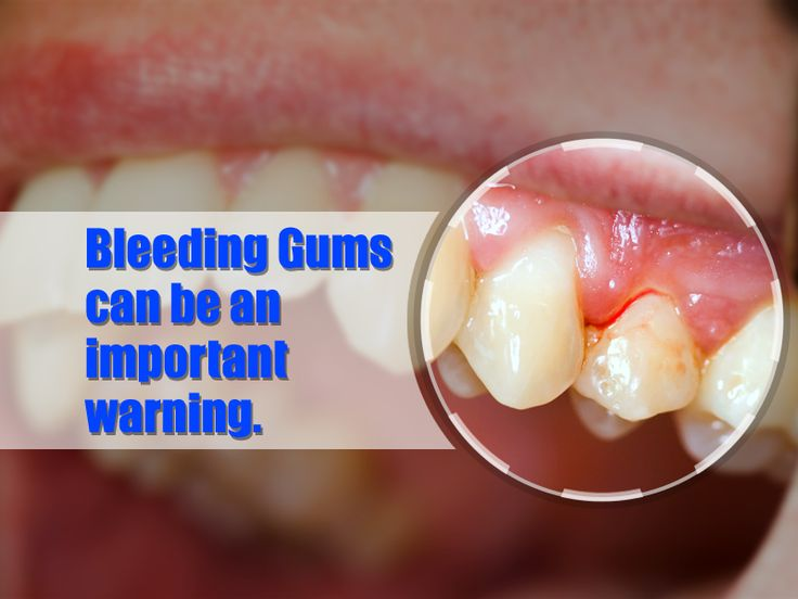 Did you Know? #Bleeding #Gums can be an important warning sign of tooth decay and gum disease.