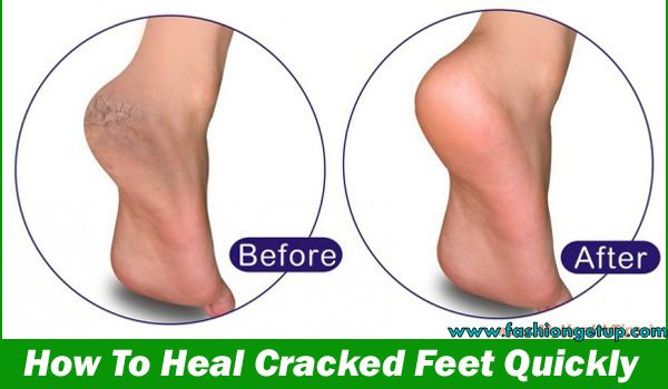Best dry feet treatment tips and heal cracked heels.Home remedies for Dry, Cracked Heels you can surely treat yourself.