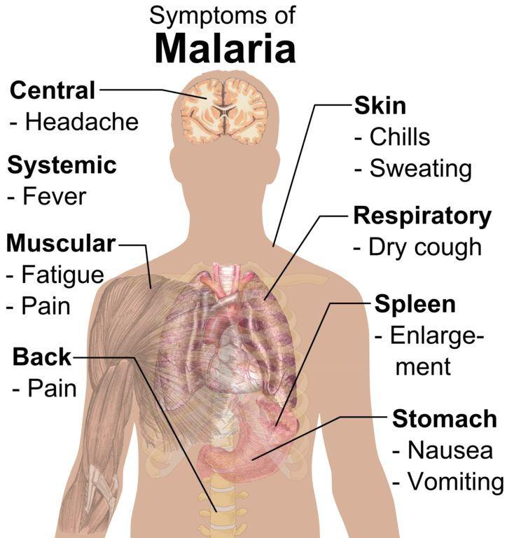 causes and symptoms of malaria pdf