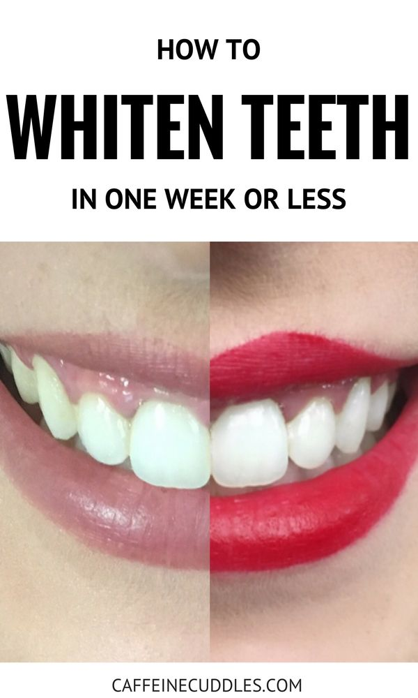 How to get a white smile FAST.  Whiten your teeth multiple shades in a week or less. Whiten teeth fast. How to whiten teeth