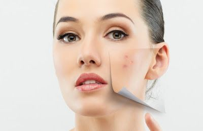 5 powerful ways to remove acne Naturally