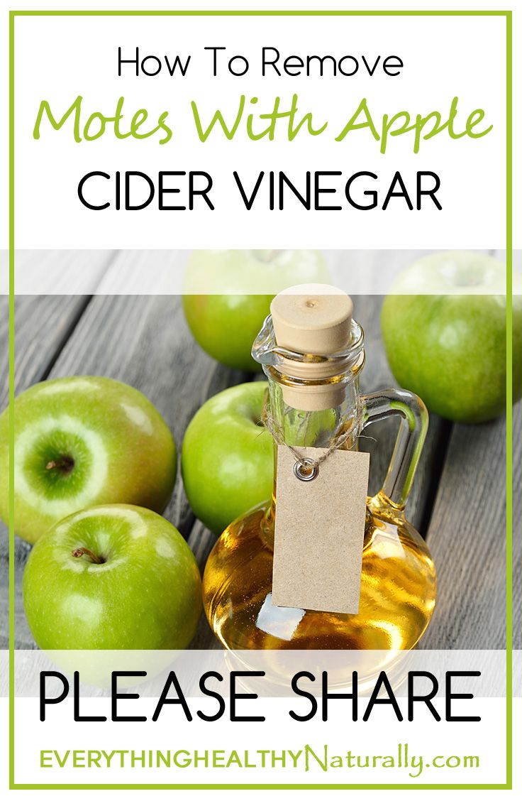 Yard moles and vinegar and castor oil - 17 Best Ideas About Mole Removal On Pinterest Natural Mole Removal Removal Of Skin Tags And Apple Cider Vinegar Warts