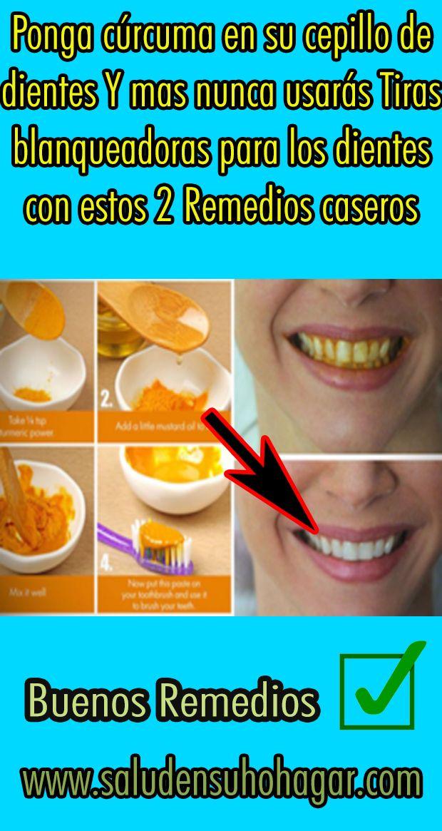 Ponga Cúrcuma En Su Cepillo De Dientes Y Mas Nunca Usarás Tiras Blanqueadoras Para Los Dientes Con E Dental Beauty Hacks Beauty Skin