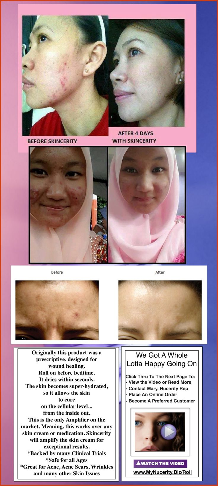 Pin on How To Cover Acne Scars