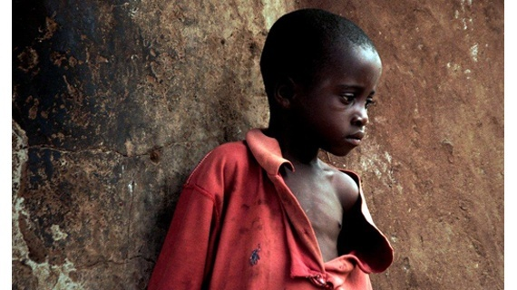 Vicky Markolefa/ActionAid  1000 children live in excile in nothern Ghana witch camps