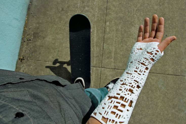 3D-Printed Cast - Medical Technologies of 2017
