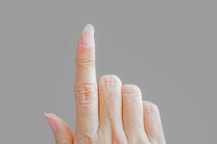 """Uratuj swoje paznokcie po """"hybrydach""""!"""