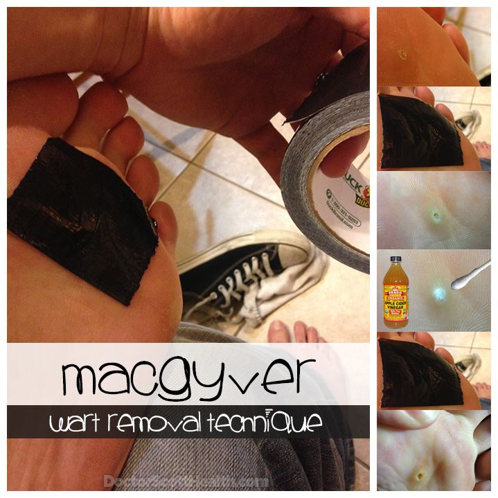 MacGyver Wart Removal Technique!   Use this seductively simple duct tape wart removal technique to quickly eliminate a wart. For deeply embedded foot warts add the extra apple cider vinegar ninja boost