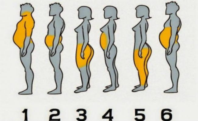 ε ποια από τις 6 κατηγορίες ανήκετε ανάλογα με τα σημεία του σώματός σας που έχετε περιττό λίπος    Η παχυσαρκία προκαλείται από πολλούς διαφορετικούς παράγοντες. Η συσσώρευση λίπους στο σώμα δεν γίνεται με τον ίδιο τρόπο