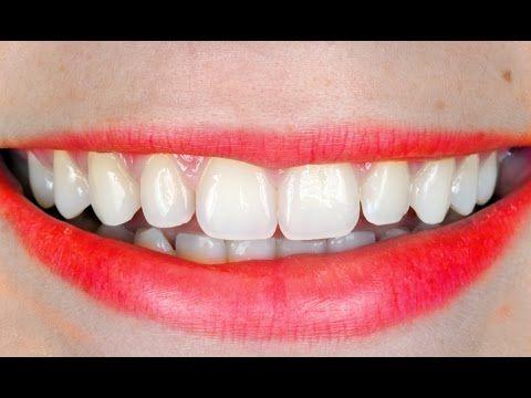 Clareamento Dental (Whiteness HP Maxx FGM) - Dr. Rodrigo Albuquerque - YouTube MUESTEO PARA PACIENTES