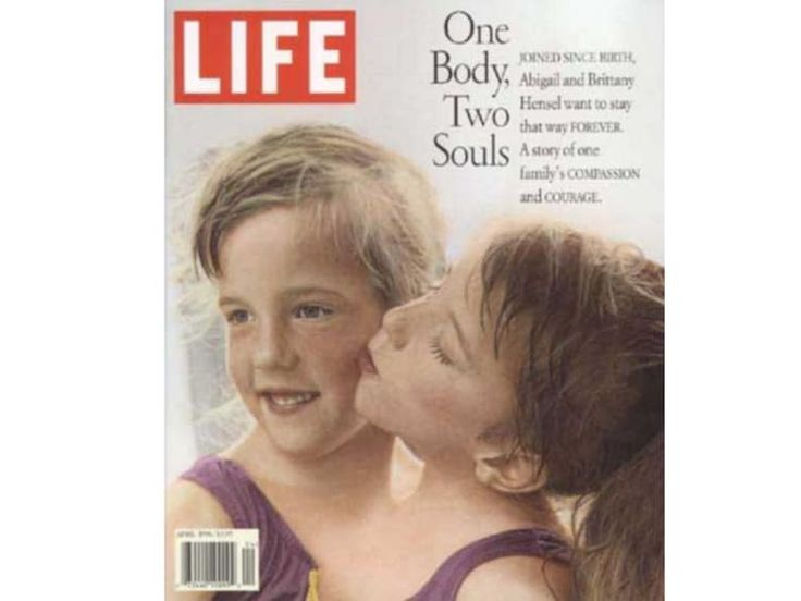 20 Interesting Things About Famous Conjoined Twins Abby And Brittany Hensel