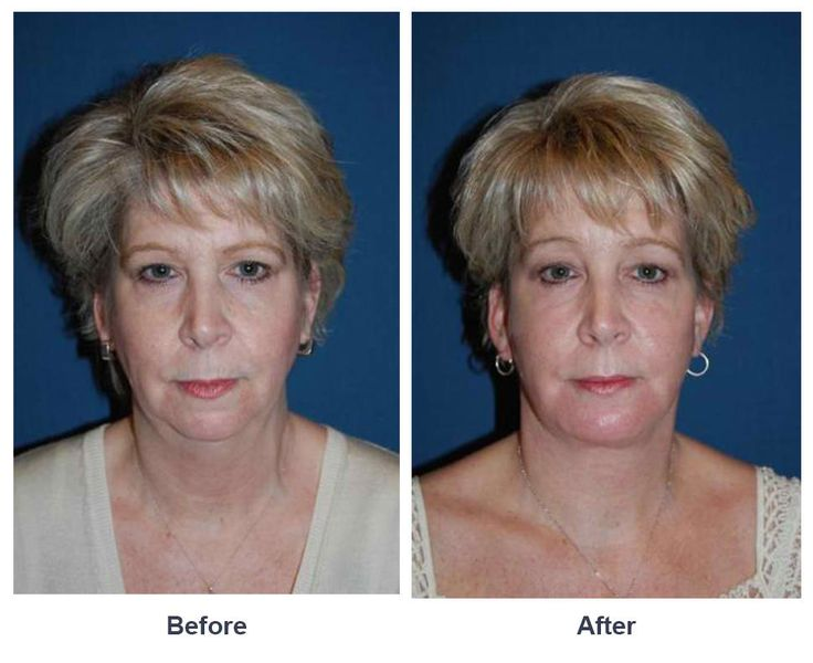 Procedures Performed: Endoscopic Brow Lift: Full Brow Lift Eyelid: Lower Lid Blepharoplasty with SOOF Facial Implants:  Chin Implants Deep Plane Facelift CO2 Laser Resurfacing: eyes and mouth Dr. Freeman's Makeovers