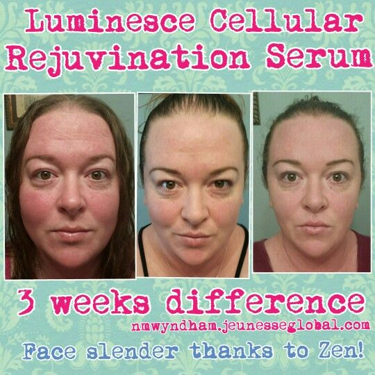 3 week difference thanks to Luminesce cellular rejuvenation serum. Slimmer face thanks to Zen Nutrition!  Nmwyndham.jeunesseglobal.com