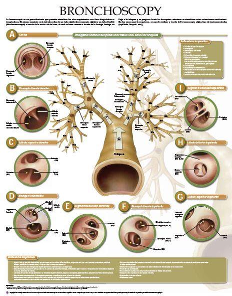 Bronchial anatomy bronchoscopy