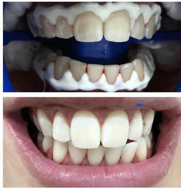 Zoom Whitening   Lighten up your smile upto 8 shades  Dont forget we are running a 50% off special for Zoom Whitening this month