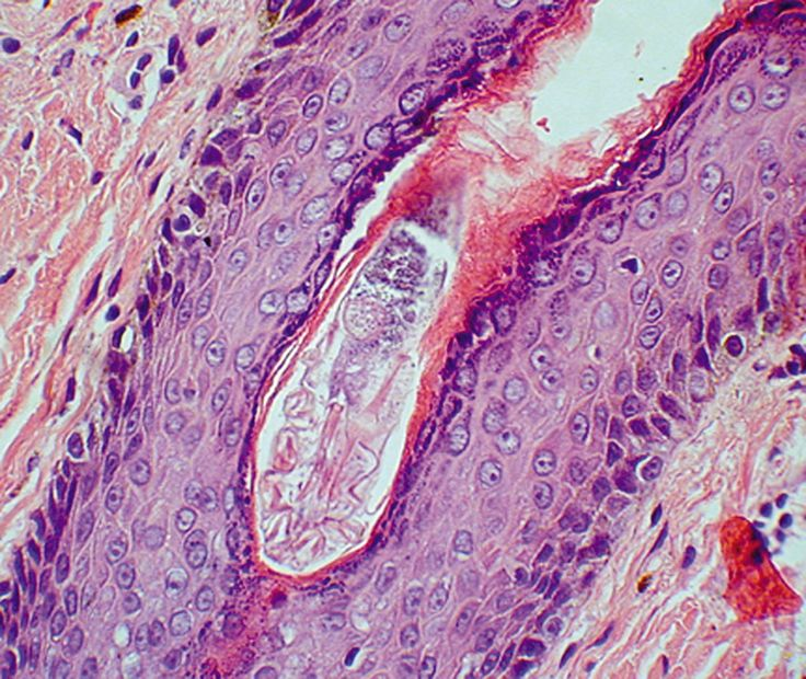 Demodex in follicle mites can affect humans as well as pets
