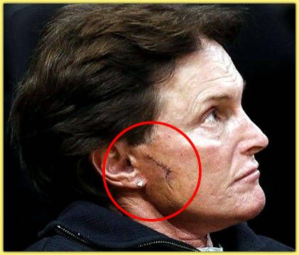 Bruce Jenner Plastic Surgery Plastic Surgery Gone Bad