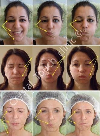 Facial expressions stroke victims