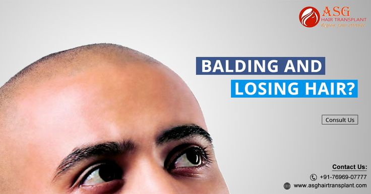 Get the perfect solution for the male and female baldness pattern problem from this topic. We share all the details that gives you perfect results.