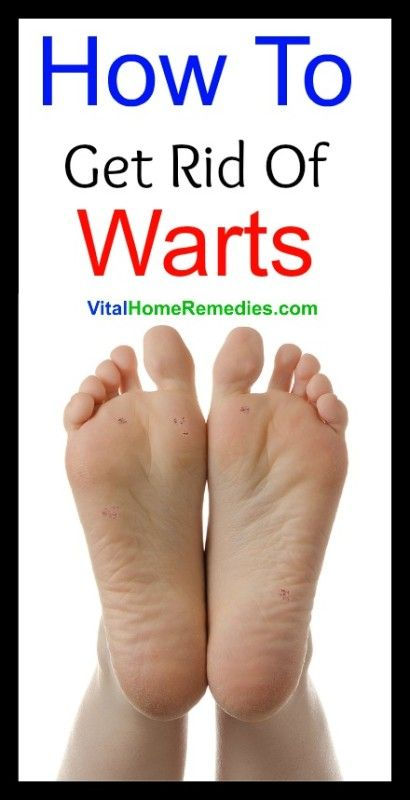 How To Get Rid Of A Foot Wart Naturally
