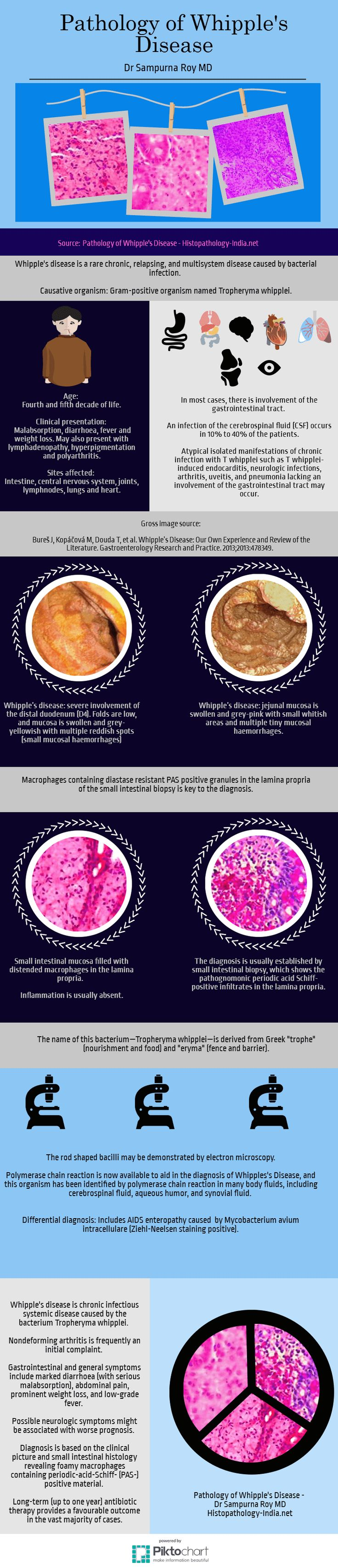 Whipple's Disease [Pathology Infographic] - #Gastrointestinal #Pathology