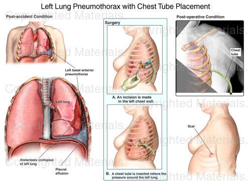 Left Lung Pneumothorax with Chest Tube Placement : Medical Exhibit