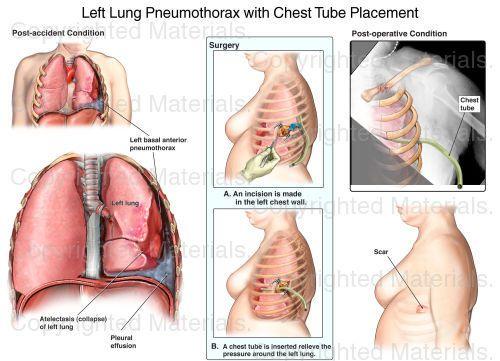 Pneumothorax Chest Tube Clip Art