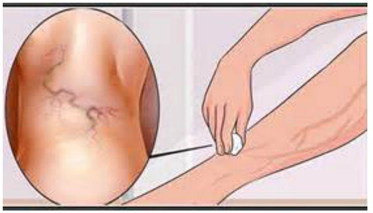 Varicele sunt vene anormal marite si vizibile la suprafata pielii. In cele mai multe cazuri, acestea apar la nivelul gambelor si coapselor.  Aceasta afectiune se regaseste la un procent de aproape 25% din femei si aproape 10% din barbati.  Varicele sunt o sursa de disconfort, oboseala, neliniste, senzatie de arsura, furnicaturi,,, picioare ingreunate.Read More