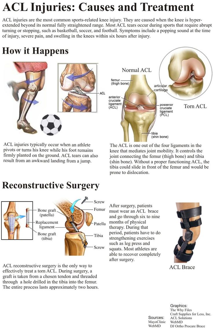 13 best MCL Tear images on Pinterest   Mcl injury ...