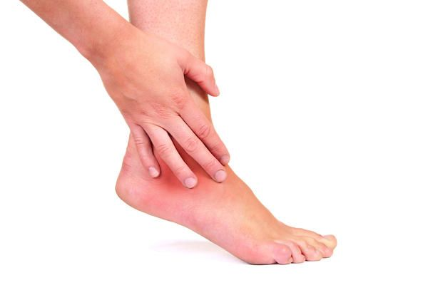 Swollen ankles Treatment, Causes - Home Remedies - WhatWillHelp
