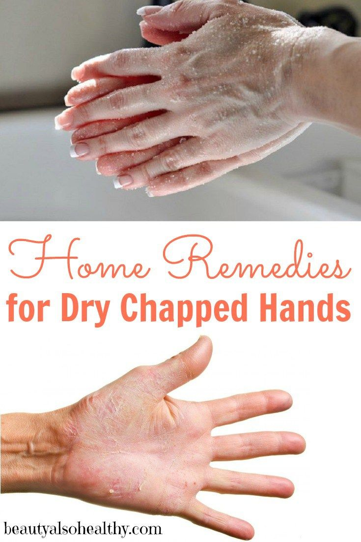 Home Remedy For Dry Skin Due To Cold Weather