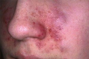 Eczema on Face