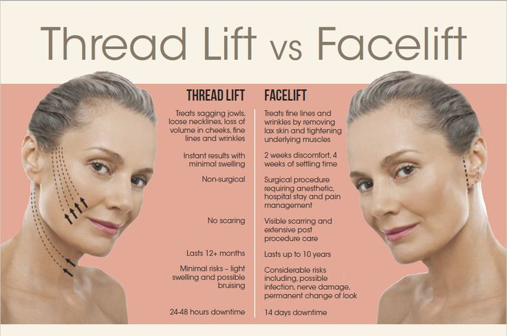 Know About PDO Thread Lift (With images)   Thread lift ...