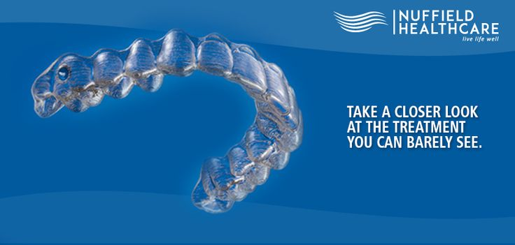 #Invisalign, clear braces - makes straight teeth possible without the use of wire #braces, giving you more reasons to #smile.  Nuffield Dental Clinics provide installment plans for certain #Teeth #Straightening procedures. To know more, call us 66361303, 62814313 or 67023238.  Schedule your appointment - www.nuffieldhealthcare.com.sg  Nuffield Dental clinics are at Kovan, Bedok & Siglap, #Singapore.   We are open 6 days a week, Monday - Saturday. Walk-in to any of our #dentalclinic today!