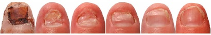 NailCured.com is an online resource dealing with nail fungus. It contains a wealth of information about the condition, including nail fungus treatment methods.