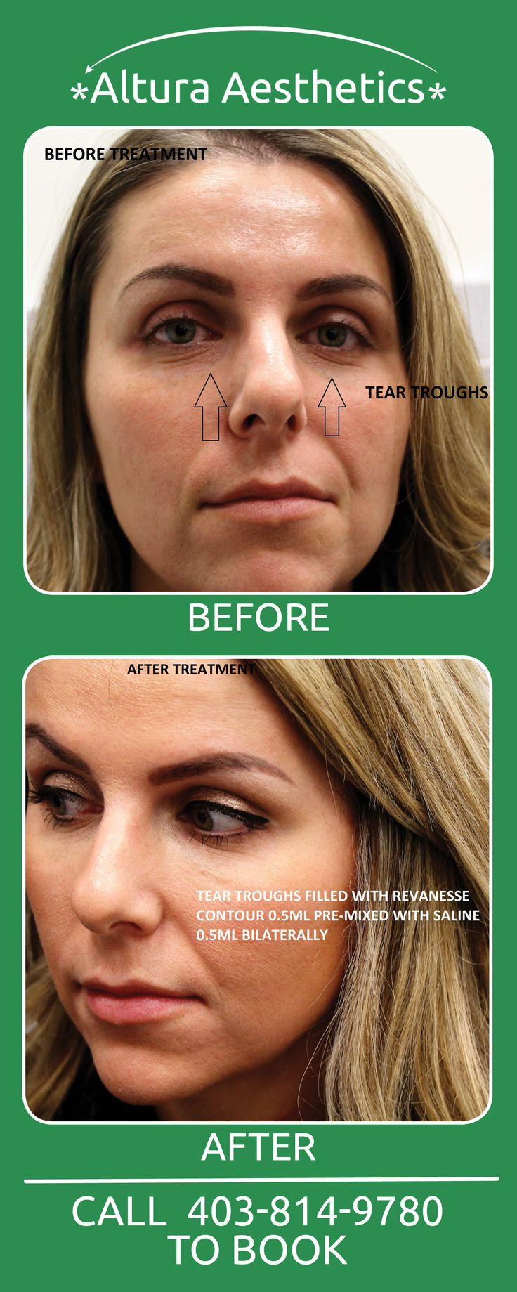 """Are you tired of looking older due to the bags under your eyes? Click the """"VISIT"""" button and book you FREE consultation to find out how Altura can help you get rid of your """"excess baggage""""."""