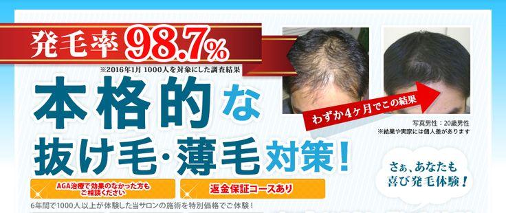 発毛実績98%本格的な抜け毛・薄毛対策|OcTaWELLNESS発毛専門サロン埼玉/大宮店