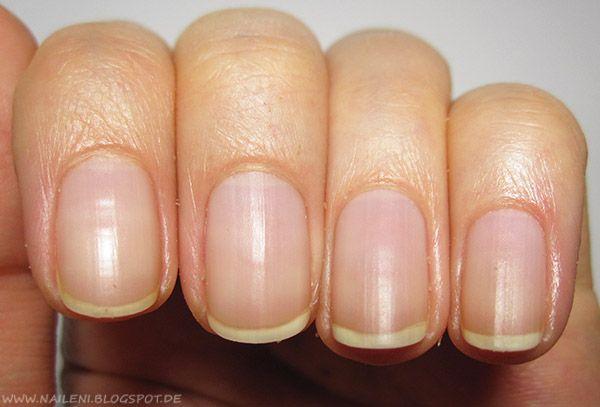 nails reloaded – [Nagelpflege] Nagelhaut entfernen und pflegen