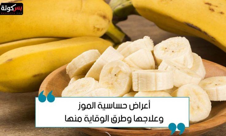 أعراض حساسية الموز وعلاجها وطرق الوقاية منها Banana Food Fruit