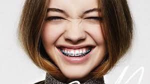 Niềng răng bằng mắc cài sẽ mang lại cho bạn nụ cười, cách giao tiếp tự tin hơn nhờ vào hàm răng đều tăm tắp...