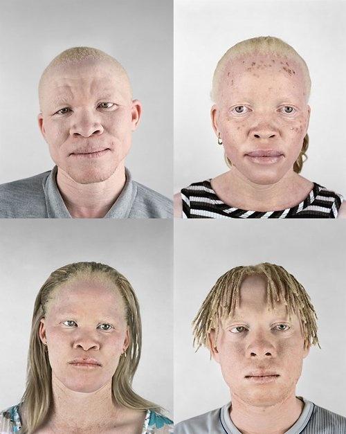 Malawis albino hunters and the rising mutilations