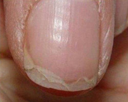 Ongles cassants et santé des ongles Idées intéressantes pour renforcer les ongles Remèdes naturels pour de beaux ongles Ongles cassants et santé des ongles Comment renforcer vos ongles avec des remèdes naturels? Comment obtenir des ongles forts, en employant des techniques de santé et des ingrédients naturels, trucs et astuces pour avoir de beaux ongles! […]